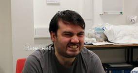 Bare Teeth