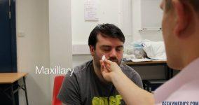 Trigeminal Maxillary