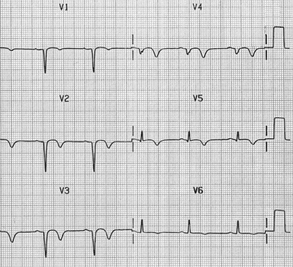 Poor R wave progression (previous anterior MI) - Image sourced from http://lifeinthefastlane.com/ecg-library/poor-r-wave-progression/