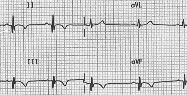 Inferior Q waves (II, III, aVF) with T-wave inversion due to previous MI - http://lifeinthefastlane.com/ecg-library/basics/q-wave/