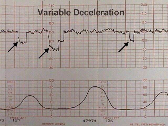 Variable deceleration