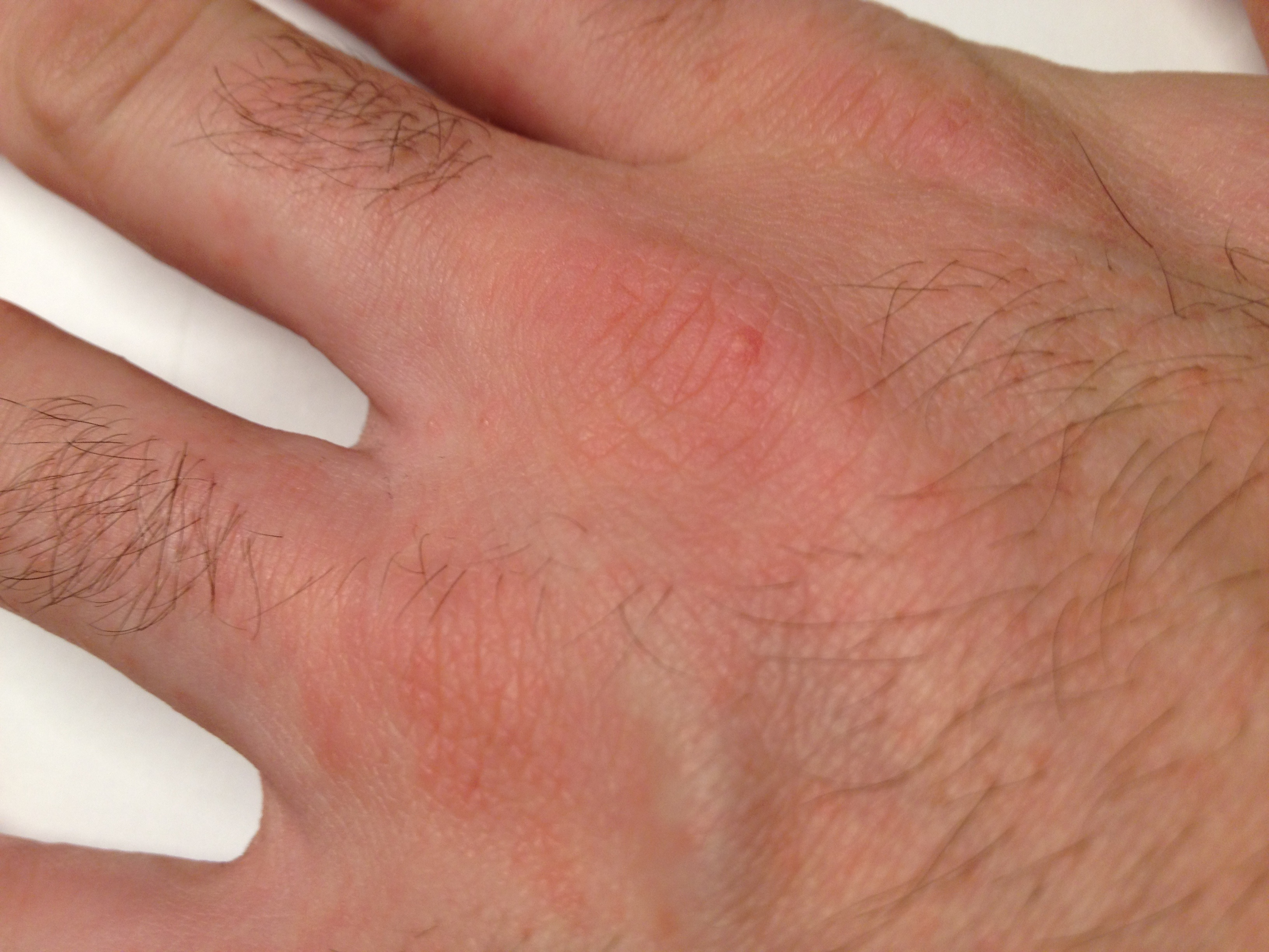 COMPLETE information about Rashes - Ashish Sharma - Hpathy.com