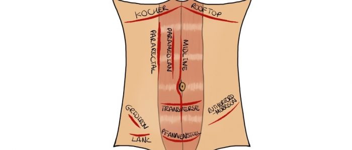 Abdominal incision types