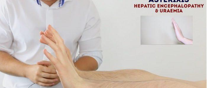 Hepatic flap (asterixis)