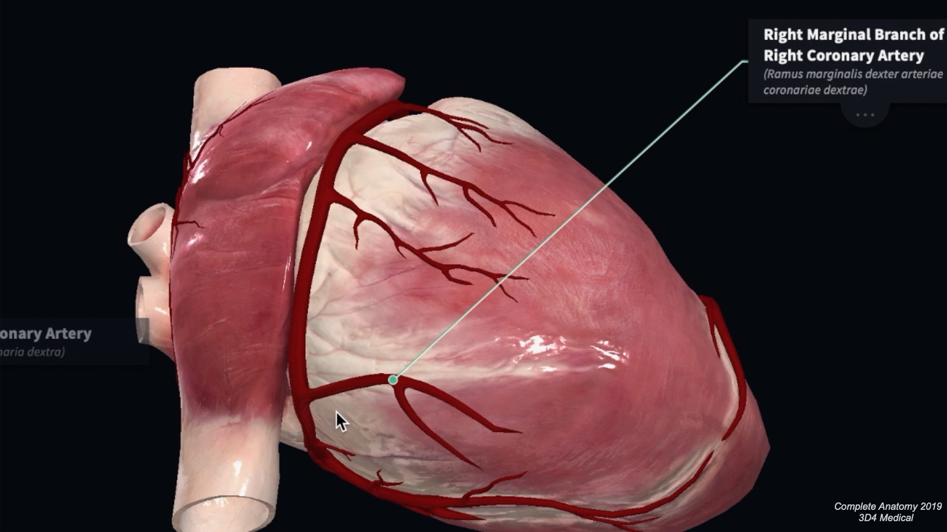 Coronary Artery Anatomy   Blood Supply to the Heart ...
