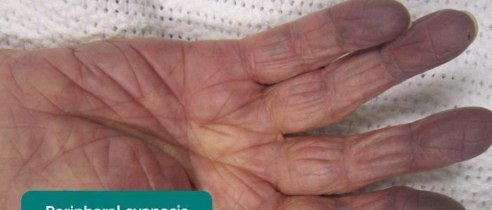 Peripheral cyanosis