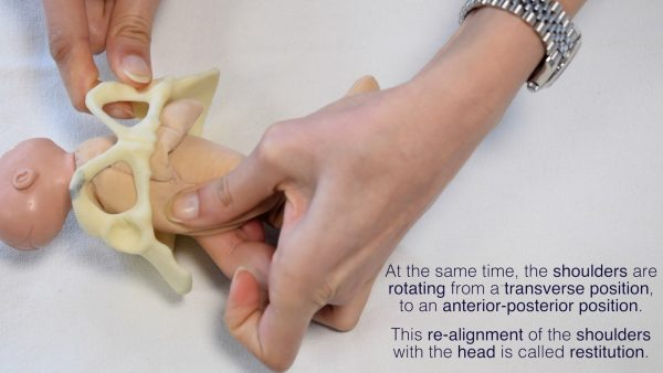Internal rotation of shoulders to an antero-posterior position