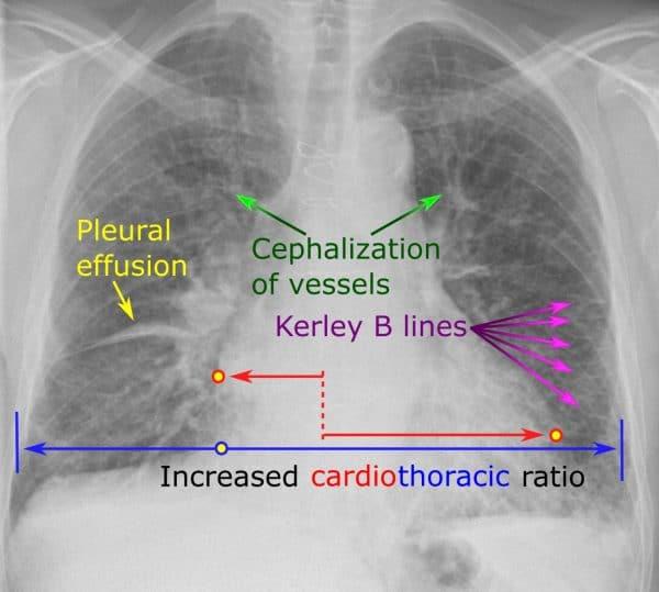 CXR signs of heart failure