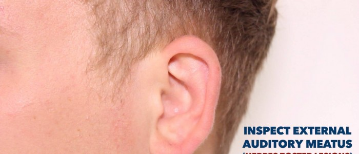 Inspect external auditory meatus.