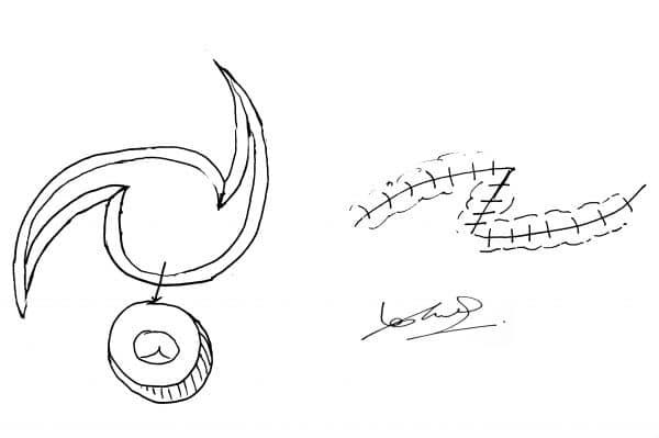 plastics drawing o-z- GM