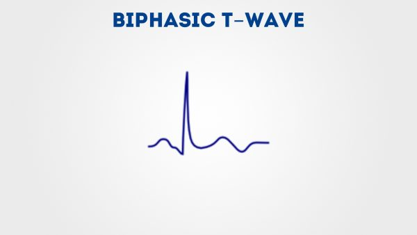 Biphasic T wave