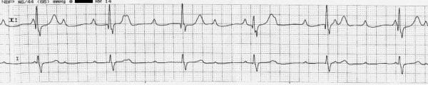 Complete heart block (3rd degree)