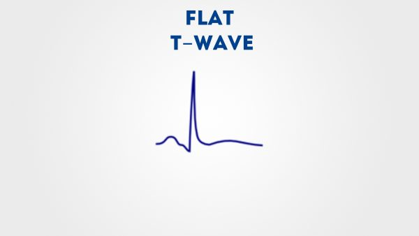 Flattened T wave