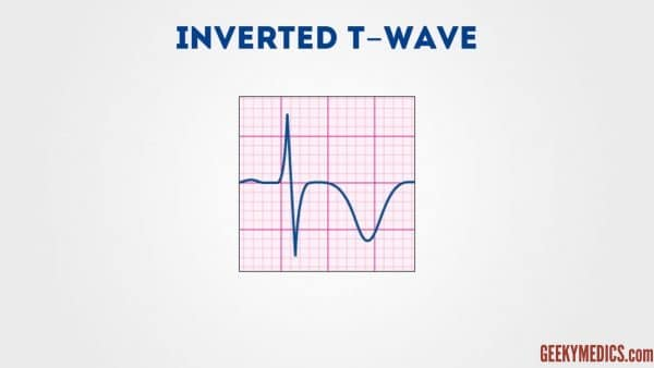 ecg - Inverted T wave