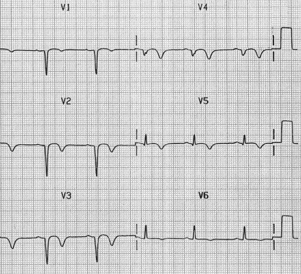 Poor R wave progression (previous anterior MI) - Image sourced from http://lifeinthefastlane.com/ecg-library/poor-r-wave-progression/