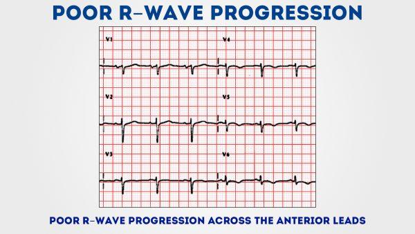 Poor R wave progression