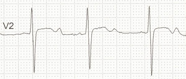 Prominent U waves in a patient with Hypokalaemia