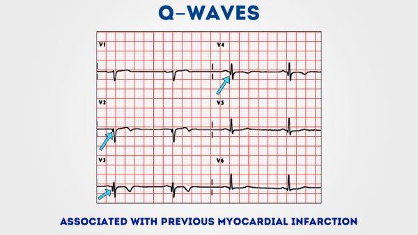 ECG - Q waves