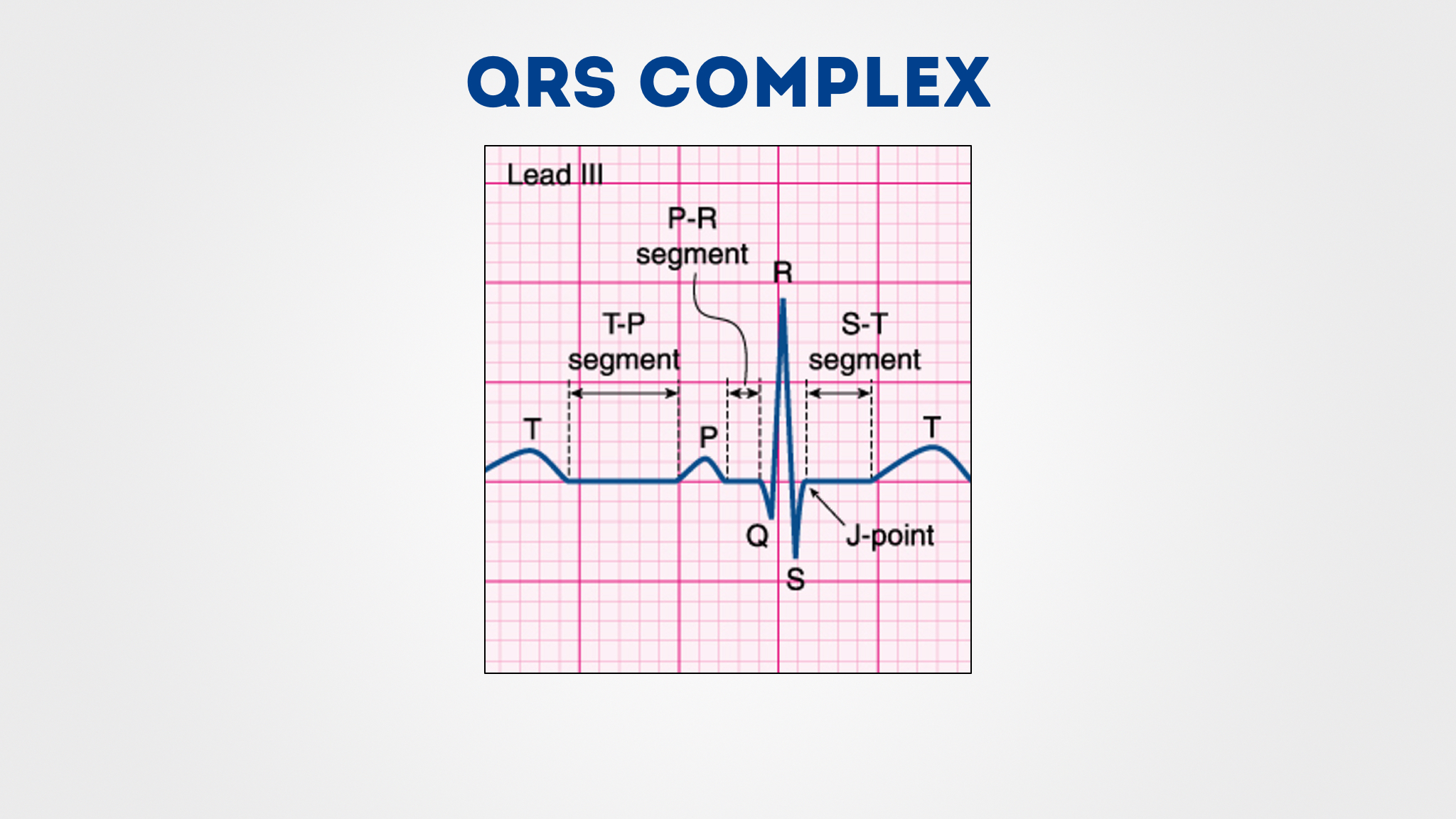 Qrs Complex    Diagram         Wiring       Schematic       Diagram