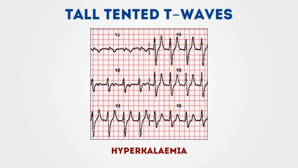 Tall Tented T waves  sc 1 st  Geeky Medics & Tall Tented T waves | Geeky Medics