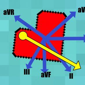 Normal cardiac axis