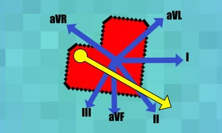 What is Cardiac Axis?