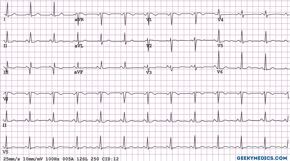 how to know ecg is normal
