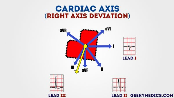 Right axis deviation