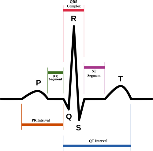 ECG different wave types