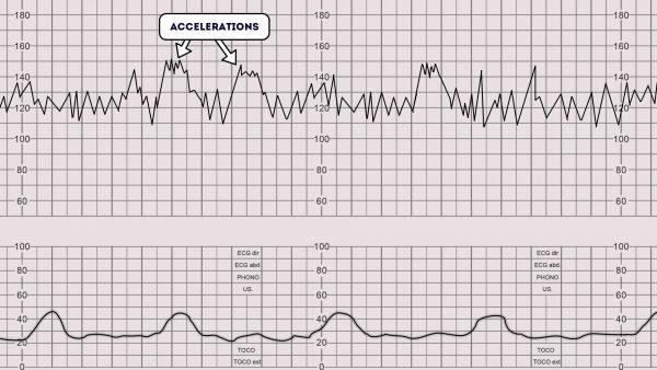 CTG - Accelerations