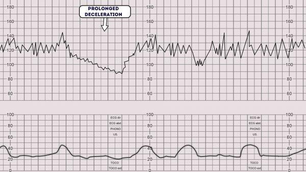 CTG - Prolonged deceleration