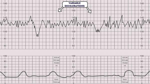 CTG - Variable decelerations