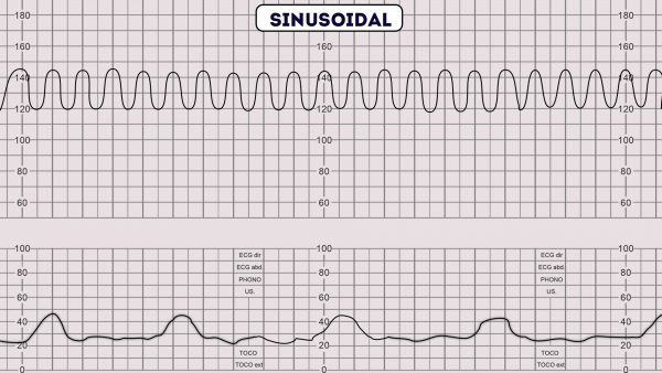 CTG - Sinusoidal pattern