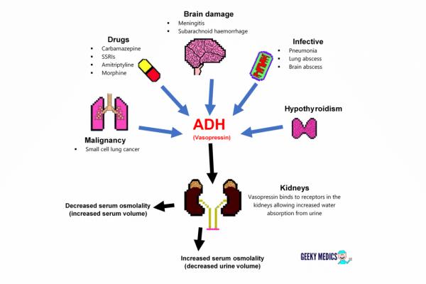 Causes of SIADH
