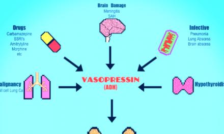 Syndrome of inappropriate antidiuretic hormone secretion (SIADH)