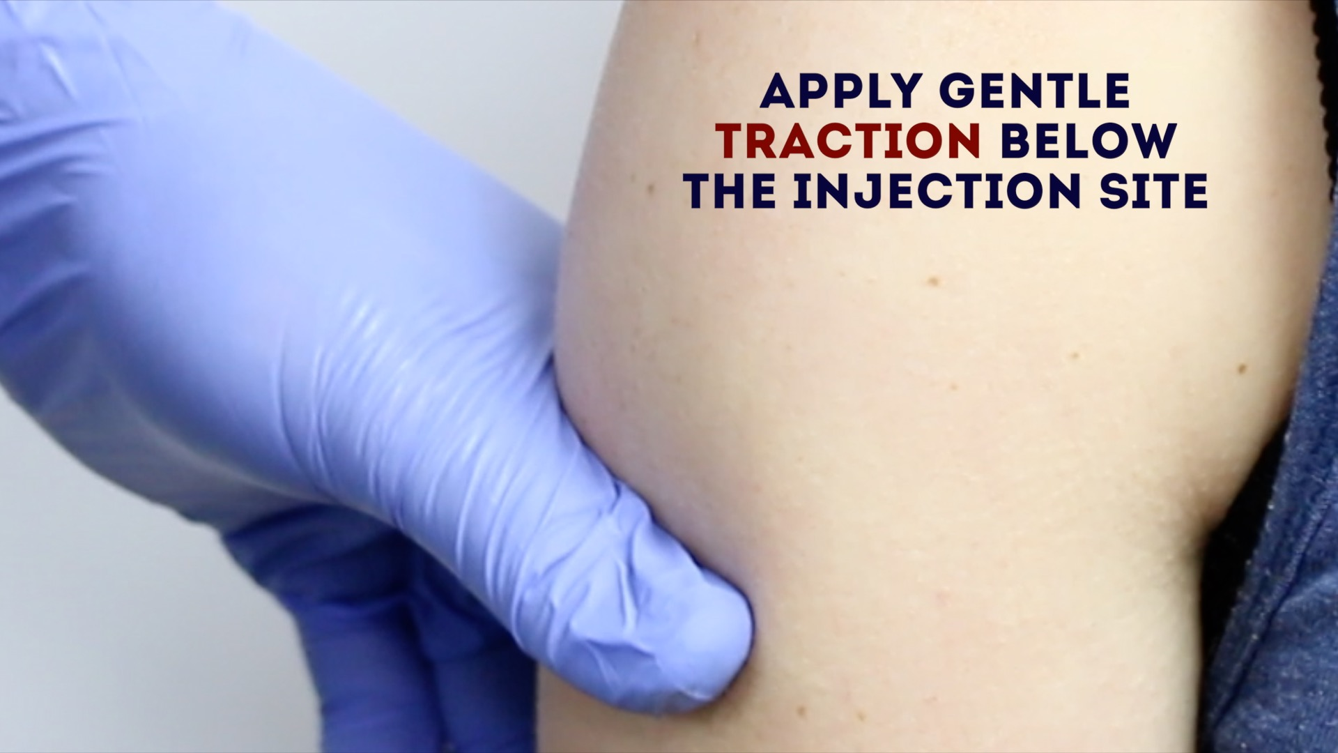 Intramuscular Injection (IM) - OSCE Guide   Geeky Medics