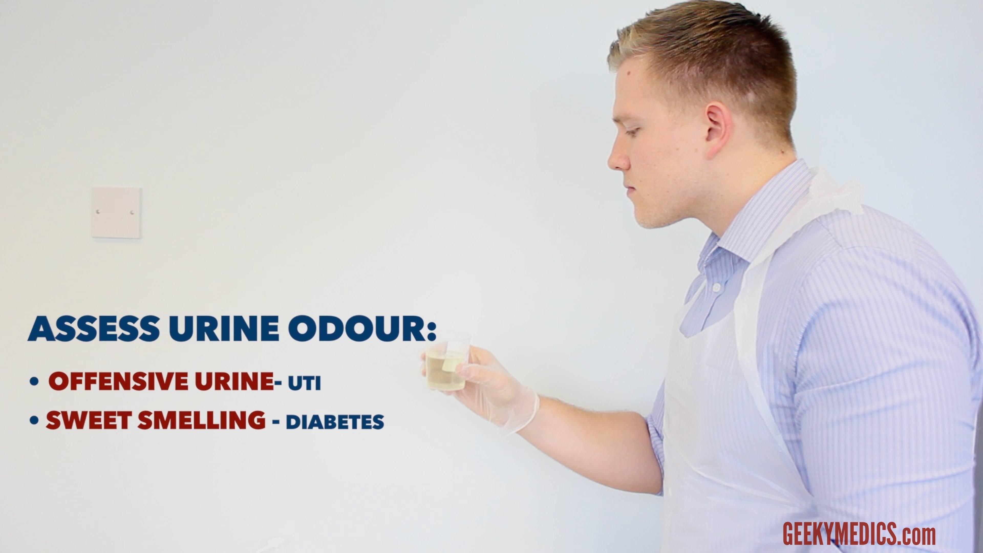 Urinalysis - OSCE Guide | Geeky Medics