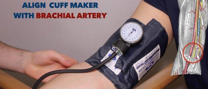 Attach blood pressure cuff