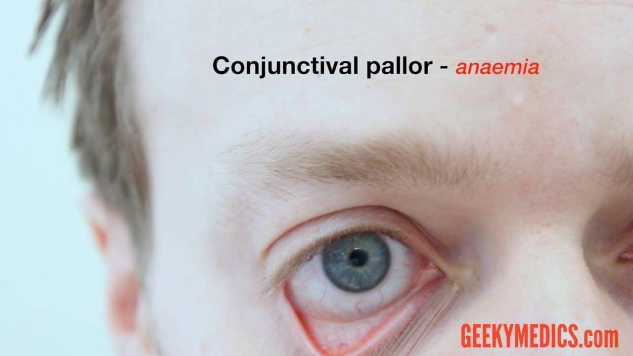 Abdominal Examination Osce Guide Geeky Medics