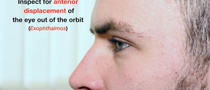 Inspect the eyes from the sides