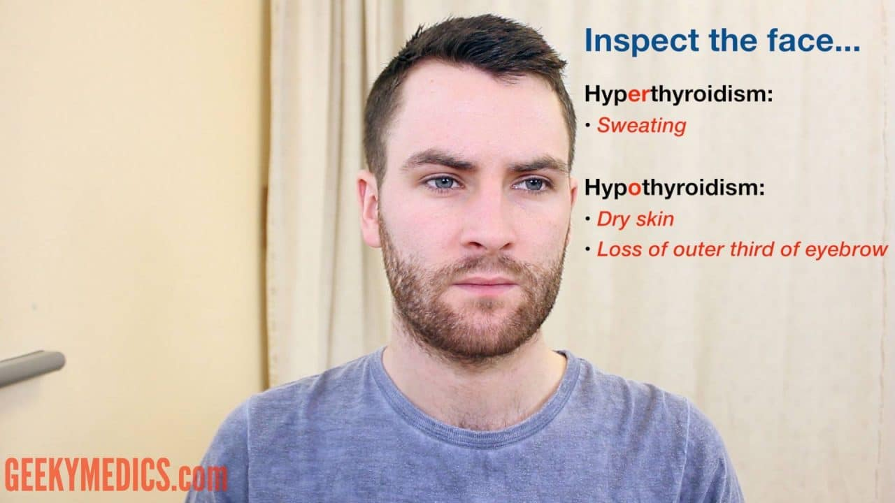Thyroid Status Examination Osce Guide Geeky Medics