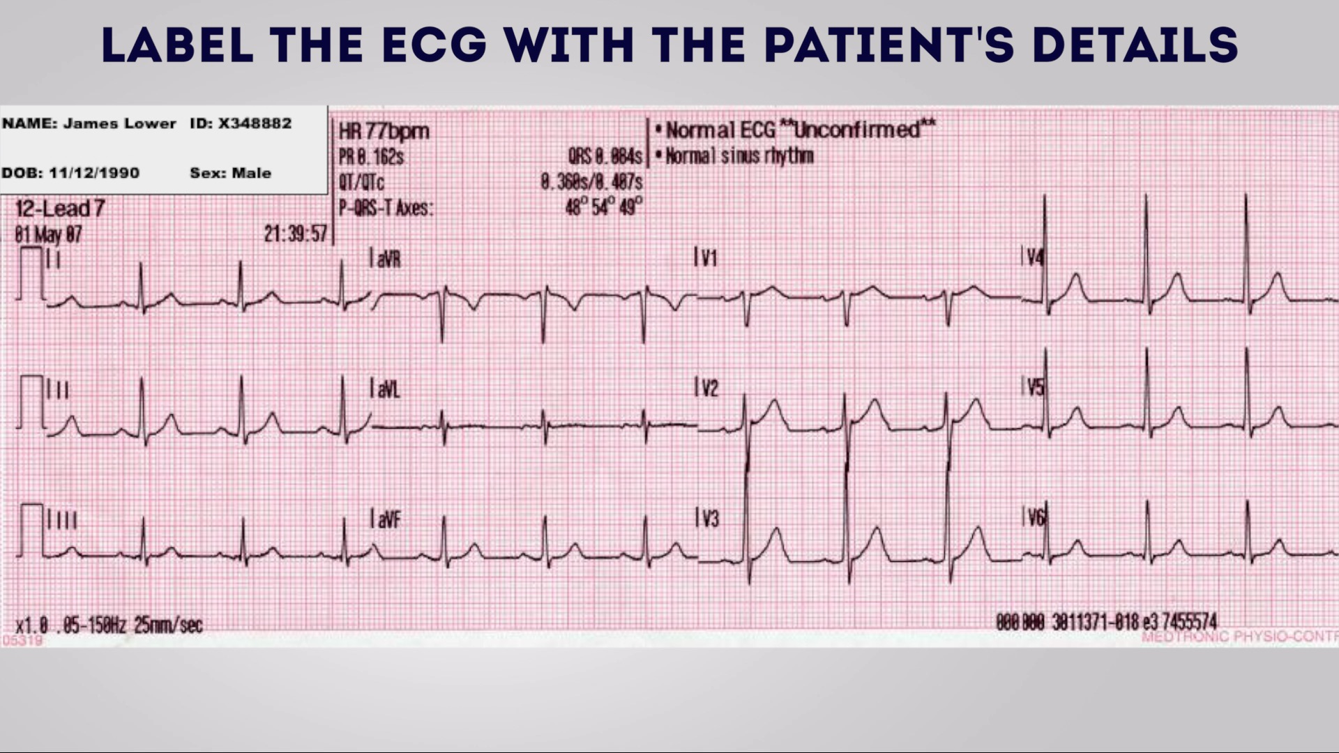 Label the ECG with the patient's details