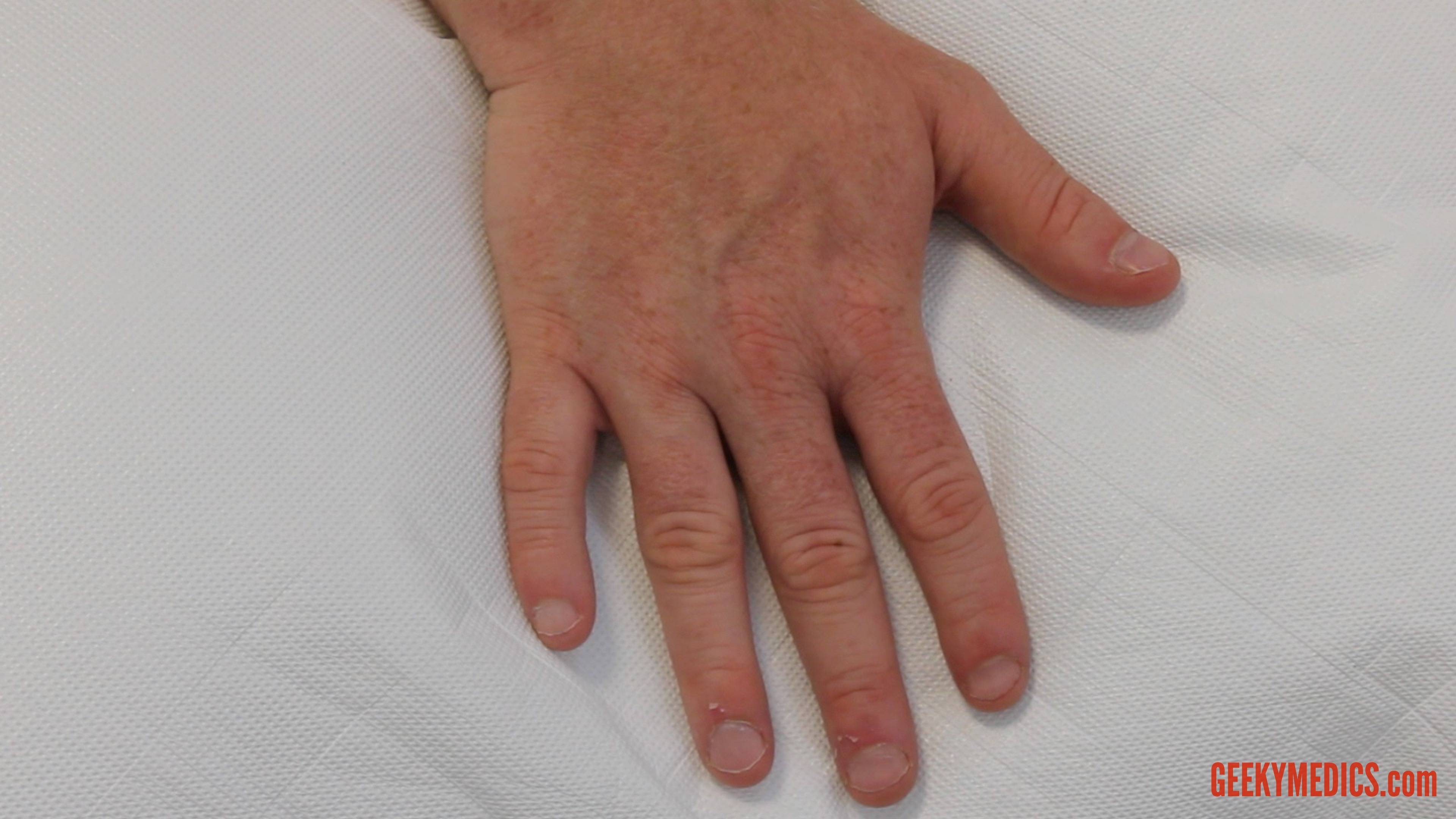 psoriasis on palms of hands