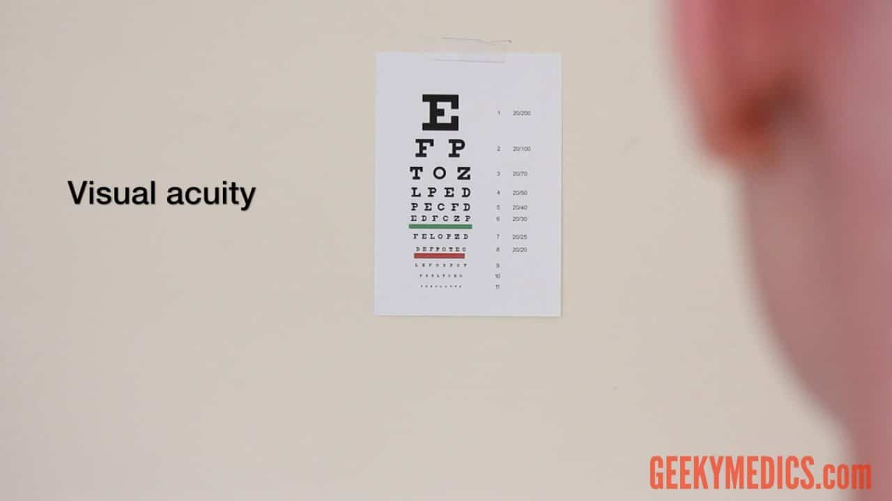 Examination of the Eyes and Vision - OSCE Guide | Geeky Medics