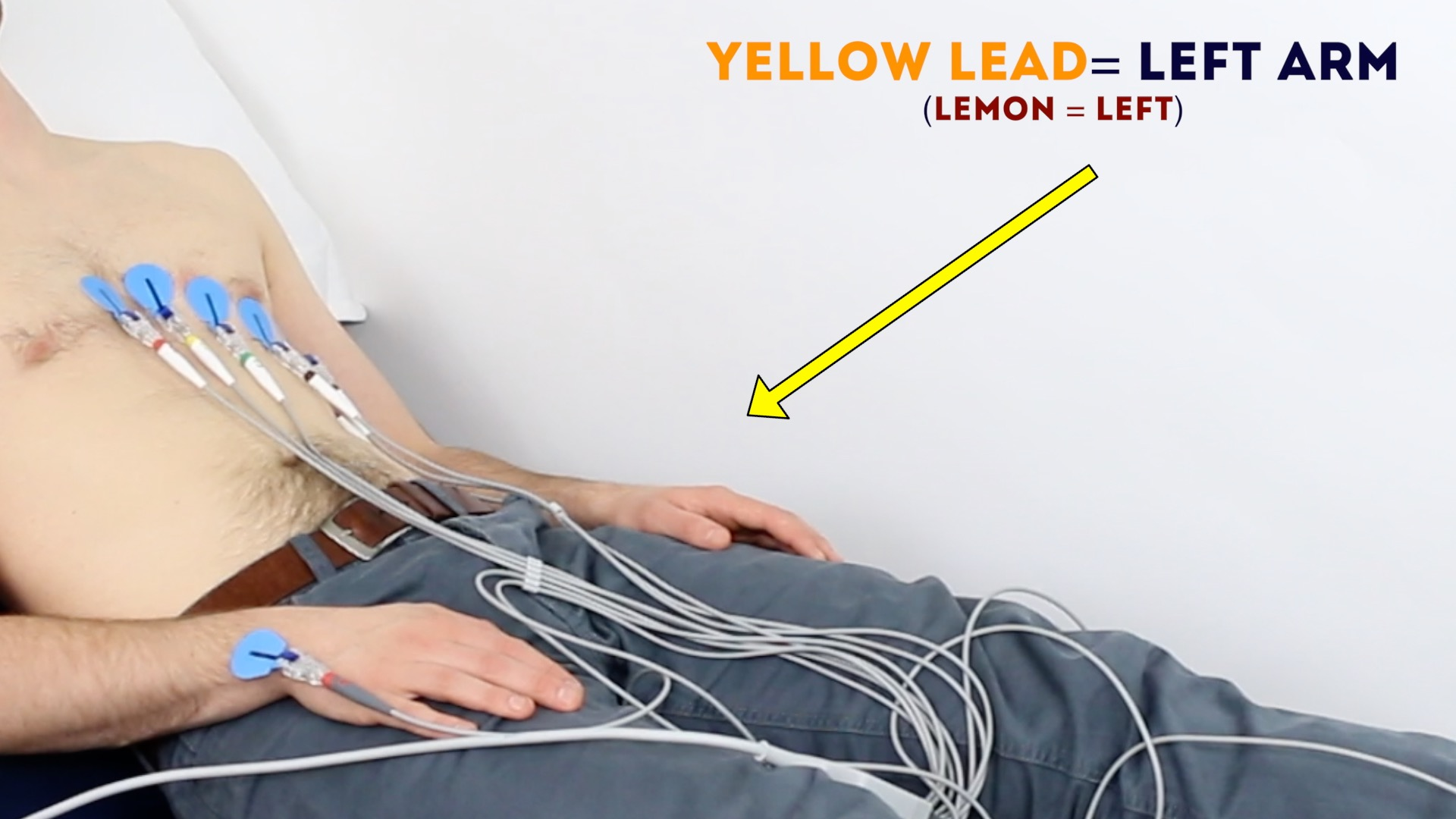 Connect the yellow ECG lead to the electrode on the left arm