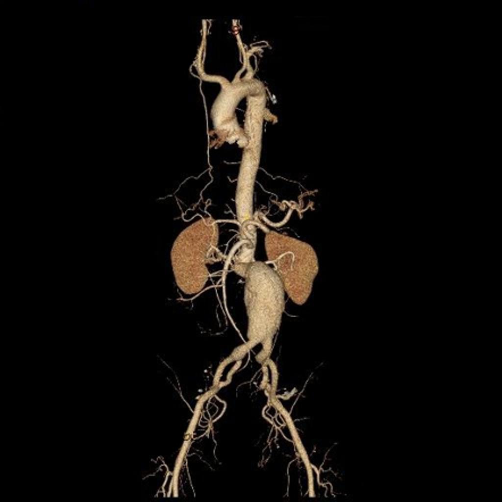 Anatomy - Abdominal Aorta | Geeky Medics