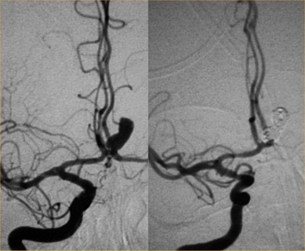 Anterior communicating aneurysm (Before/After coiling)