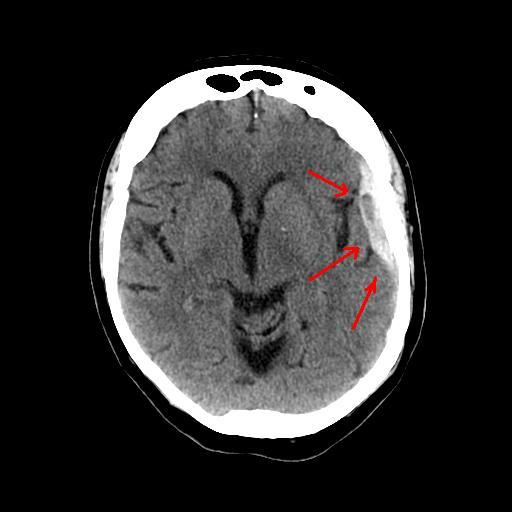 Left subdural haematoma