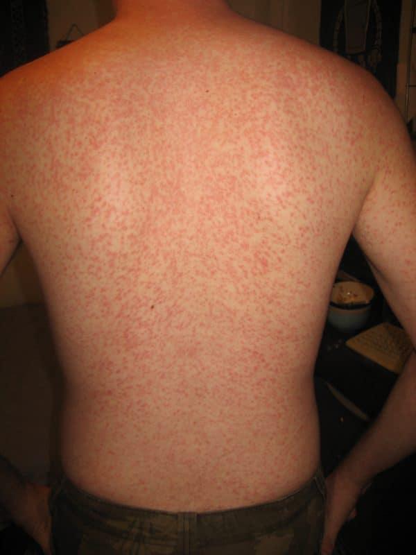 EBV penicillin rash