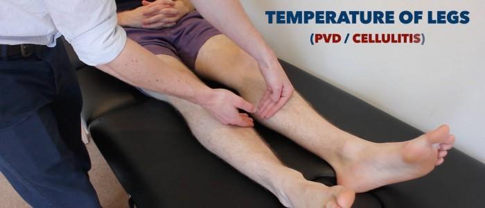 Leg temperature